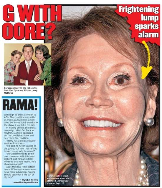 Celebrity Mary Tyler Moore Pic Before And After Plastic Surgery - http://plasticsurgeryclass.com/celebrity-mary-tyler-moore-pic-before-and-after-plastic-surgery/?Pinterest