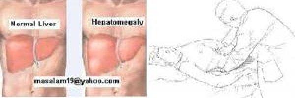 liver problem symptoms | enlarged liver | pinterest | search and, Skeleton