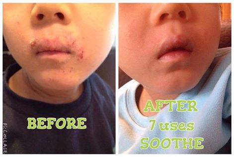 "Meet Caden and hear his mom's own words about his results with the Soothe Regimen in the first photo ""Friends, if you know me, you know the tears, the time and the money I have spent to alleviate my own son's severe eczema. I have spent thousands of dollars on creams, doctor appointments, special Chinese medicine, herb baths, diets etc. His whole body is affected but his upper lip area was almost always cracked, bleeding and/or red - some days worse than others. Here are Caden's results afte"