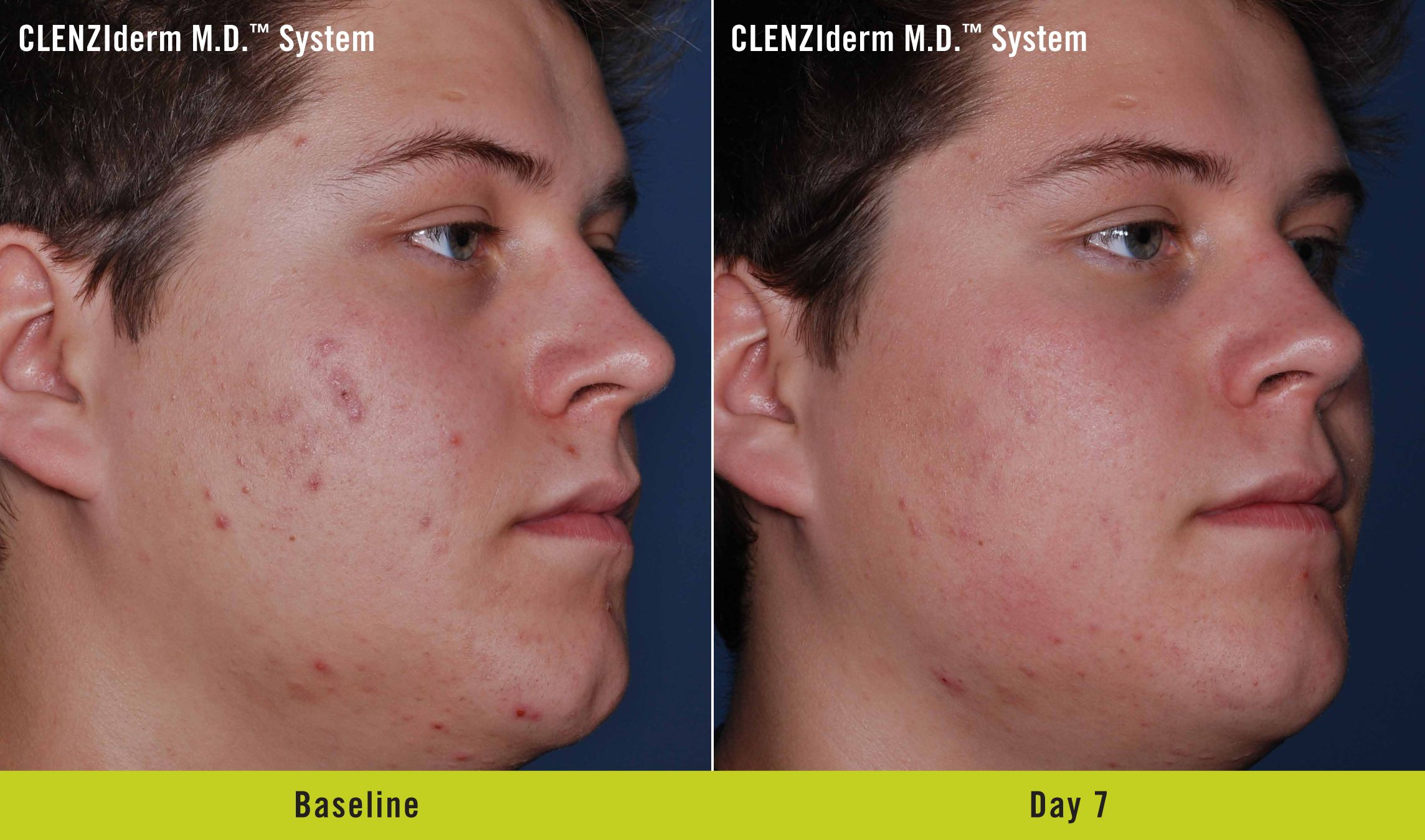 Clenziderm M D System Serious Skin Care Clear Skin Fast Best Natural Skin Care