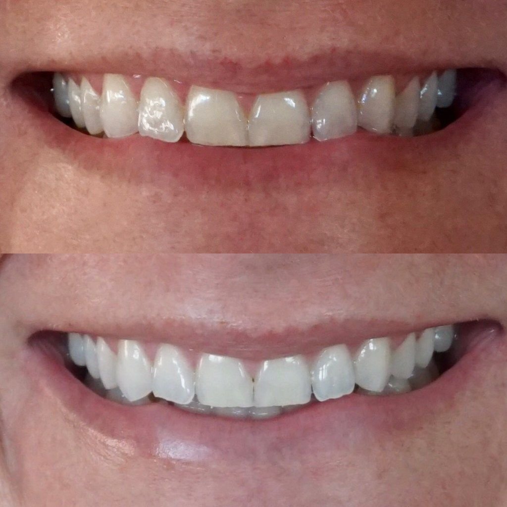 Colgate teeth whitening teeth whitening products pinterest teeth - Teeth Whitening Before And After