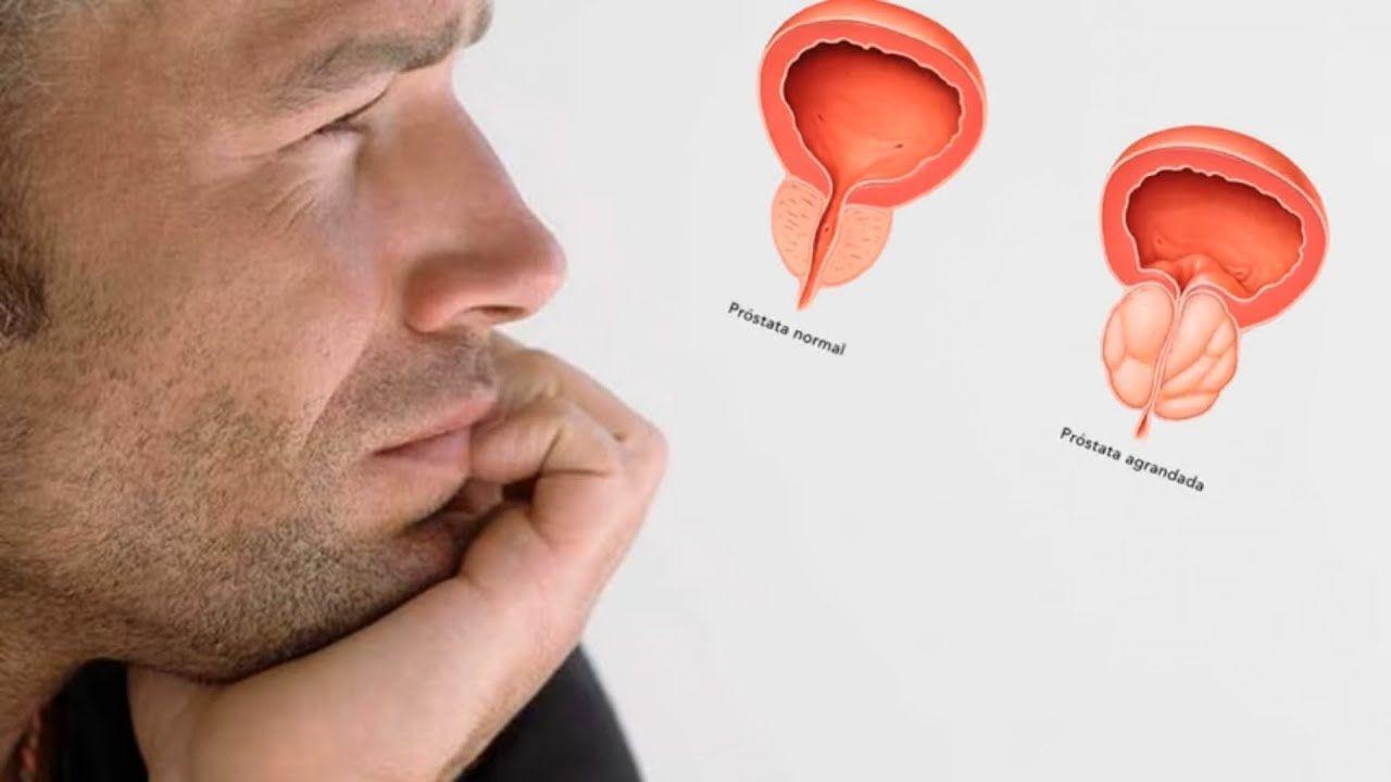 como curar la inflamación de la próstata ajo d