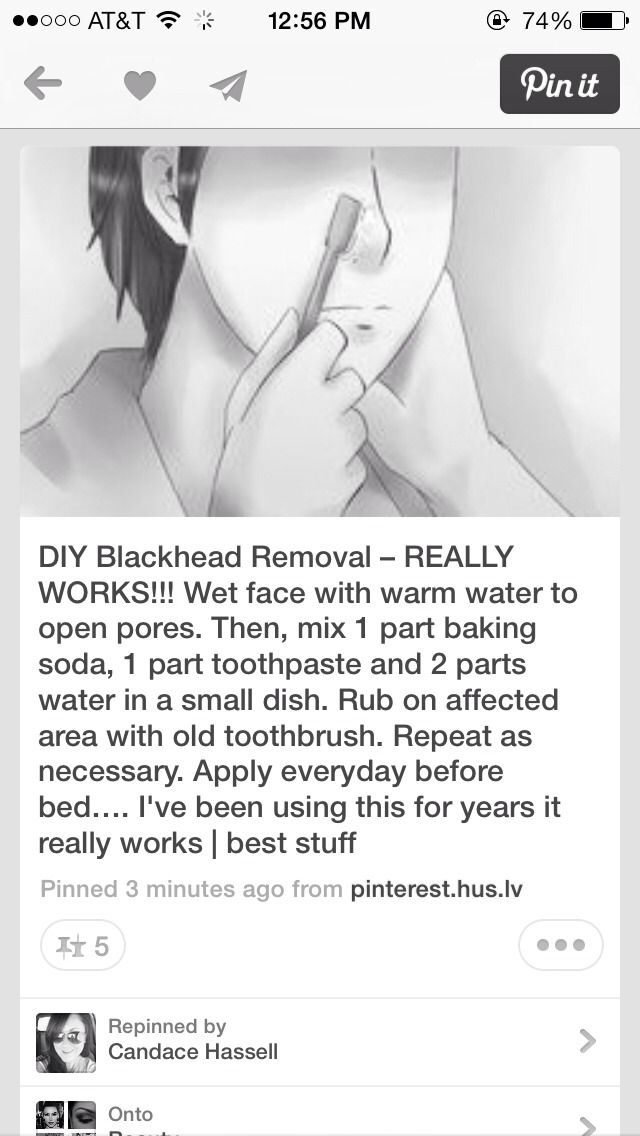 how to get rid of blackheads on face naturally