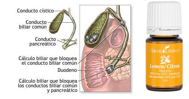 dieta de cálculos biliares embarazo diabetes