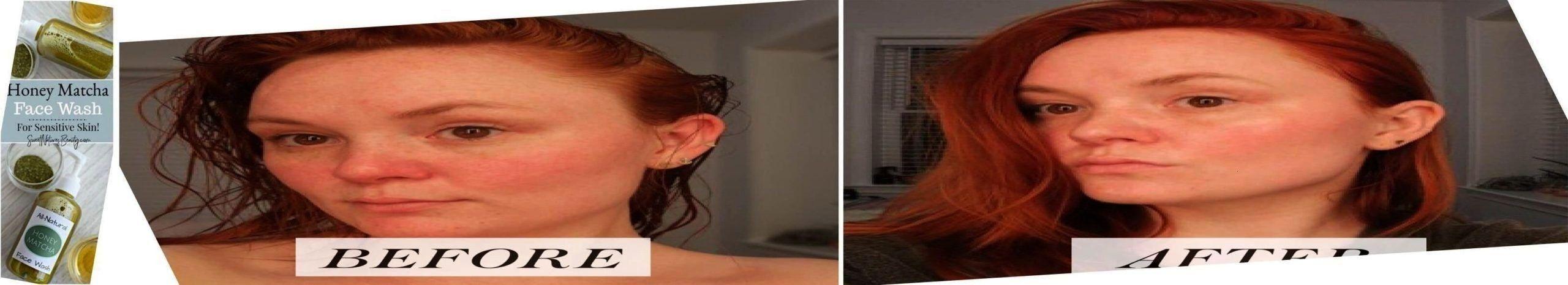 Photo of Modedesigner #fondos Hautpflege-Fondos, Hautpflege-Fotoshooting, Hautpflege piel…