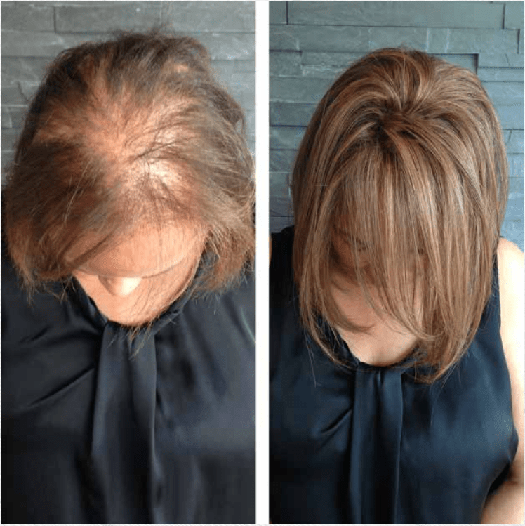 Thinning Hair Gallery   Extremely thin hair, Hairstyles ...