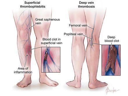 superficial thrombophlebitis vs dvt