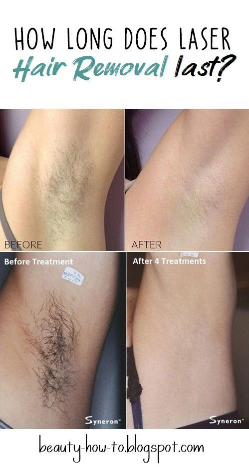 How long does laser hair removal last? | Laser hair, Laser ...