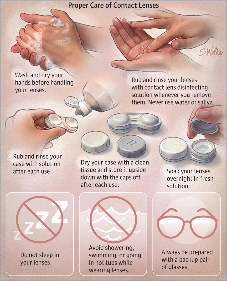 b546c85314c58 Proper Care of Contact Lenses. JAMA. 2015 314(14) 1534.  doi 10.1001 jama.2015.12468.  eyecare