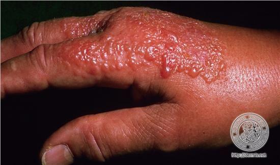 que tipos de enfermedades de la piel existen