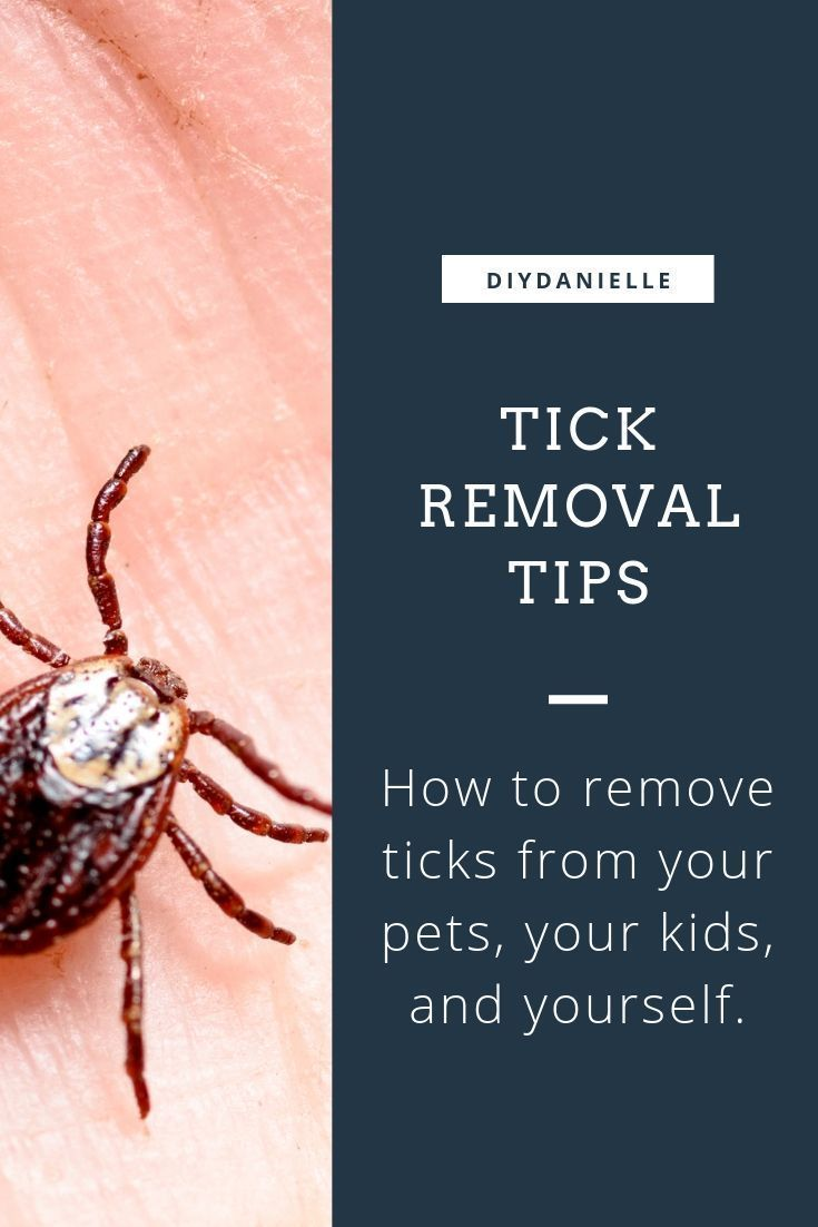 How to remove a tick diy danielle in 2020 tick removal