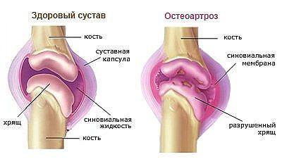 если болят колени | в здоровом теле здоровый дух | Pinterest | 27