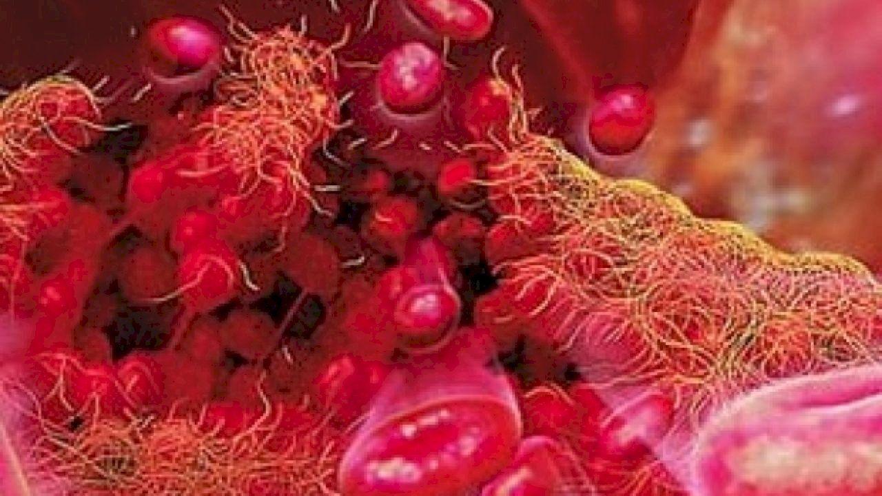 ما هو سبب نزول صفائح الدم Platelets