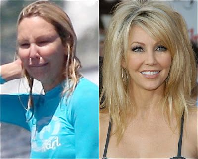 The Illusion of Beauty: Artificial vs Natural -Heather Locklear - the one on the left must have been right after some cosmetic work - either that or some sort of allergic reaction that puffed her up...