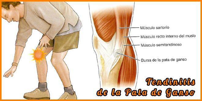Tendinitis pata de ganso o anserina. Es una lesión muy molesta para  corredores y ciclistas 7e9842adf9a3