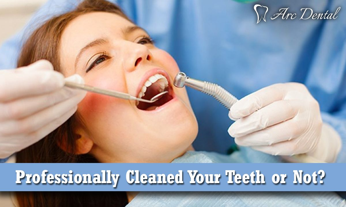 Professionally Cleaned Your Teeth or Not? Dental
