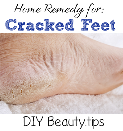 Home Remedy For Cracked Feet Diy Beauty Tips Cracked Feet Remedies Cracked Feet Foot Remedies