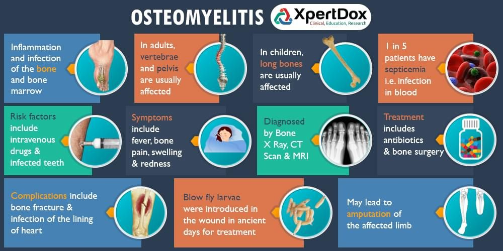Osteomyelitis is the medical term for an infection in a ...