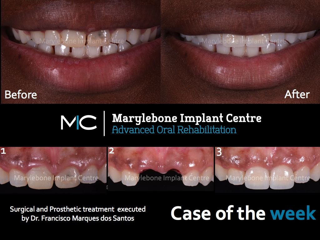 2 Front Implants Surgical And Prosthetic Treatment By Dr Santos
