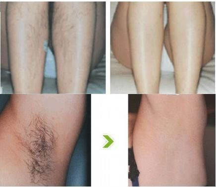 Before And After Laser Hair Removal 6 Sessions Average Diode Laser Hair Removal Laser Hair Removal Unwanted Hair Removal