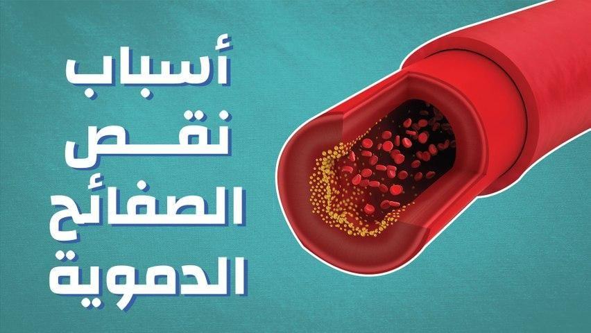 أسباب نقص الصفائح الدموية Ashtray