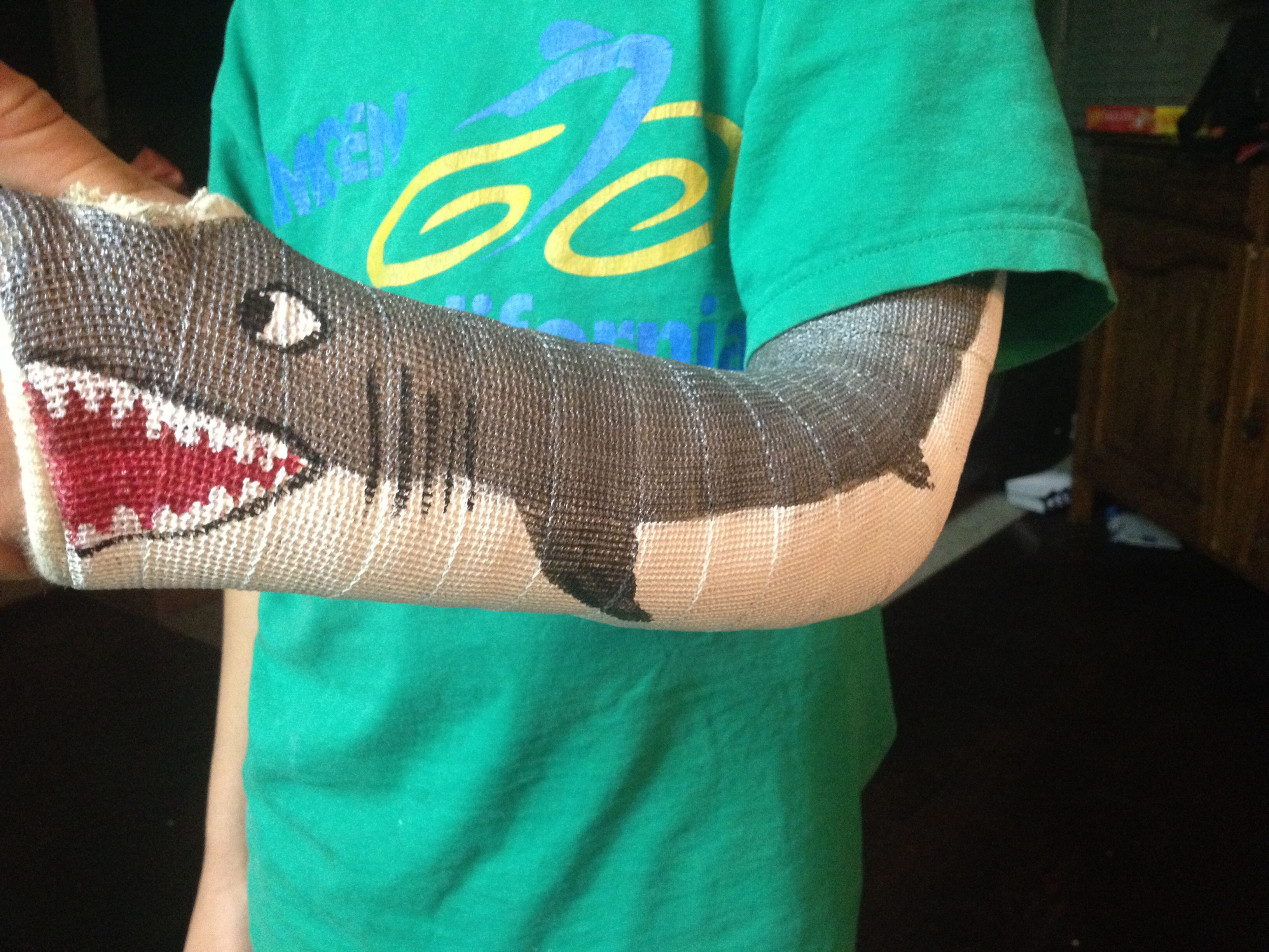 Colored cast - Painting A Great White Shark On My Son S Cast One Way To Make A Broken