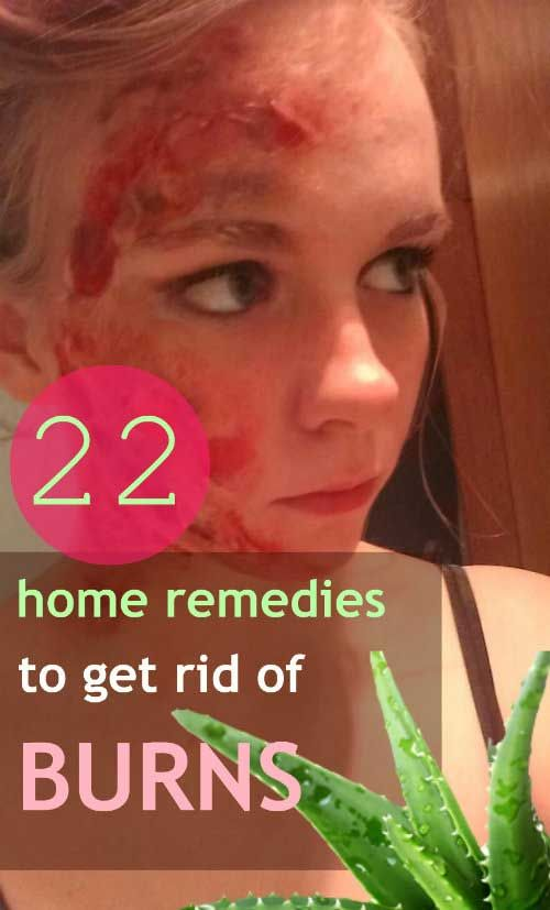 How To Get Rid Of Ice Burn On Face