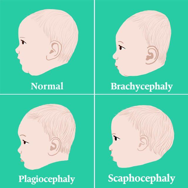 Plagiocephaly Flat Head Syndrome Parents Kids Flat