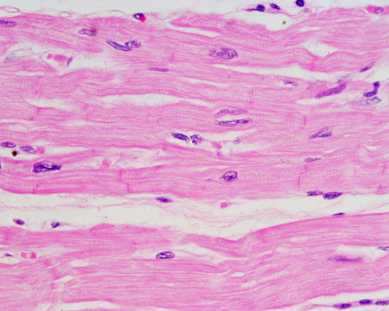 human muscle tissue – onehotbitch, Muscles