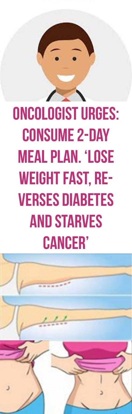 Types of weight loss surgery comparison image 3
