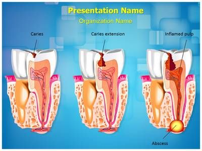 check out our professionally designed tooth decay #ppt #template, Powerpoint templates