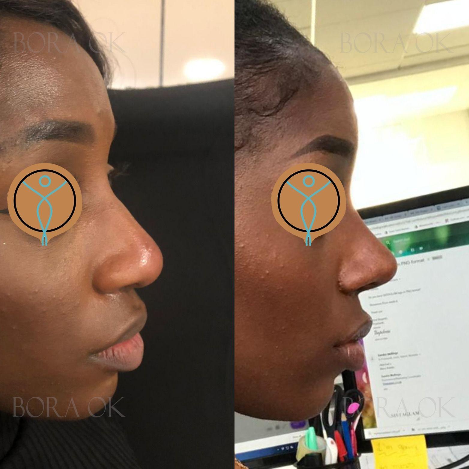 Ethnic Rhinoplasty (Nose Job) panosundaki Pin