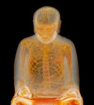 Scan Reveals Mummified Monk Inside 1,000-Year-Old Buddha Statue