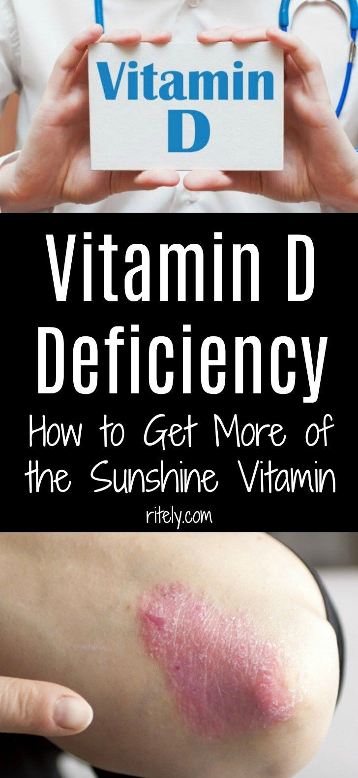 Vitamin 'D' Deficiency How To Get More Of The Sunshine Vitamin!!!!  #wieghtloss  #fitness