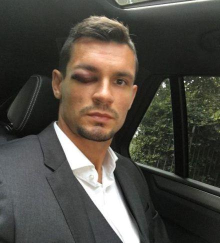 Liverpool defender Dejan Lovren missed out of Leicester clash due to horrific eye injury