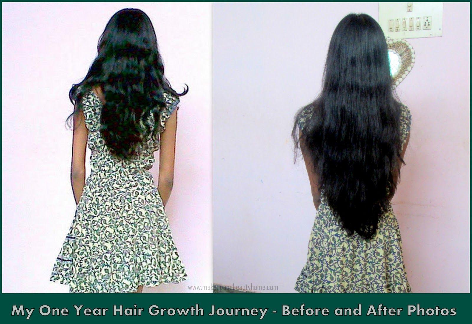 Vitamin b12 protiv opadanje kose