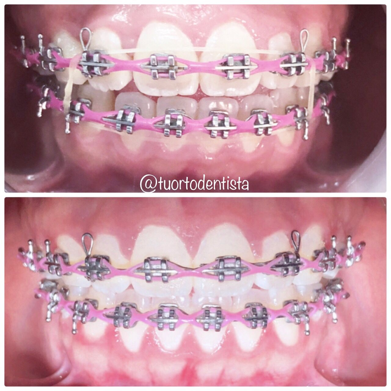 Elastico En Caja Anterior Jewelry Crown Jewelry Crown