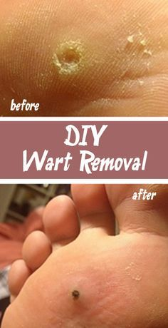 how to take off a wart on your foot