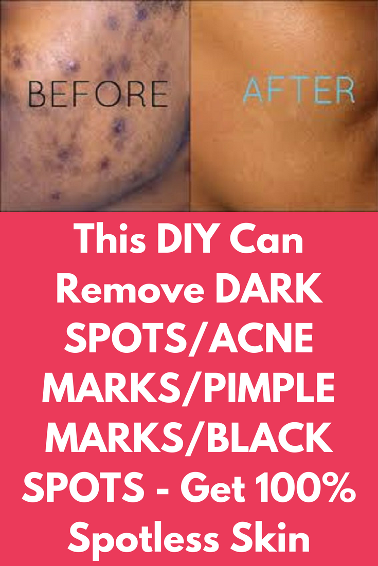 How To Get Rid Of A Pimple Dark Spot