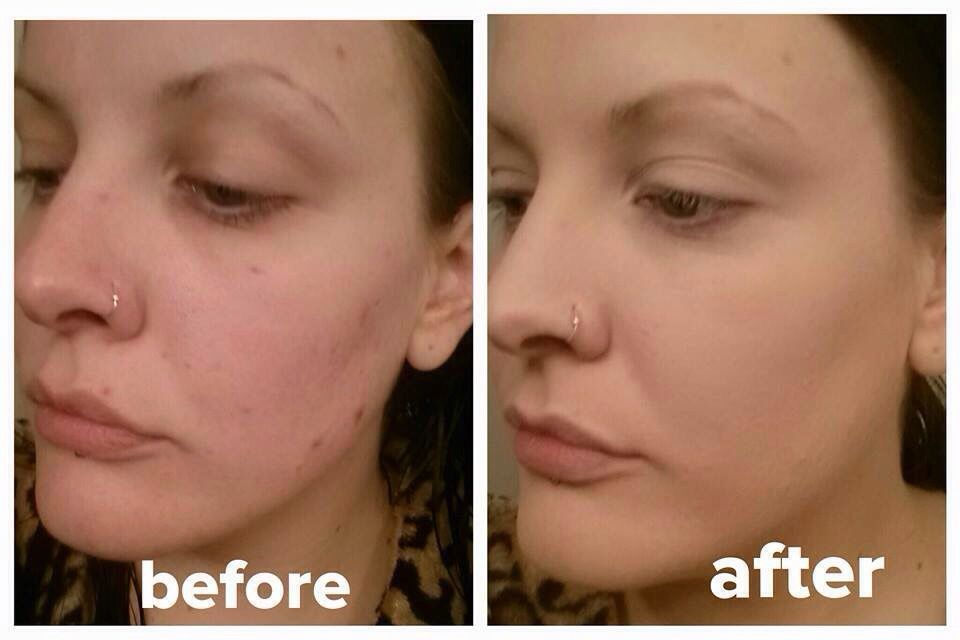Look at these results! She is wearing Youniques Touch Cream and Touch Powder!  Flawless! http://evpo.st/1ttS7PK