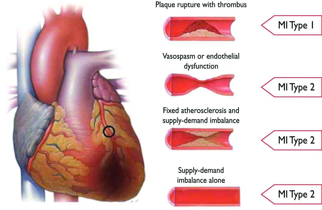 myocardial infarction   Third Universal Definition of