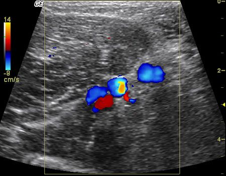 doppler ultrasound can document the presence of a total occlusion, Cephalic Vein
