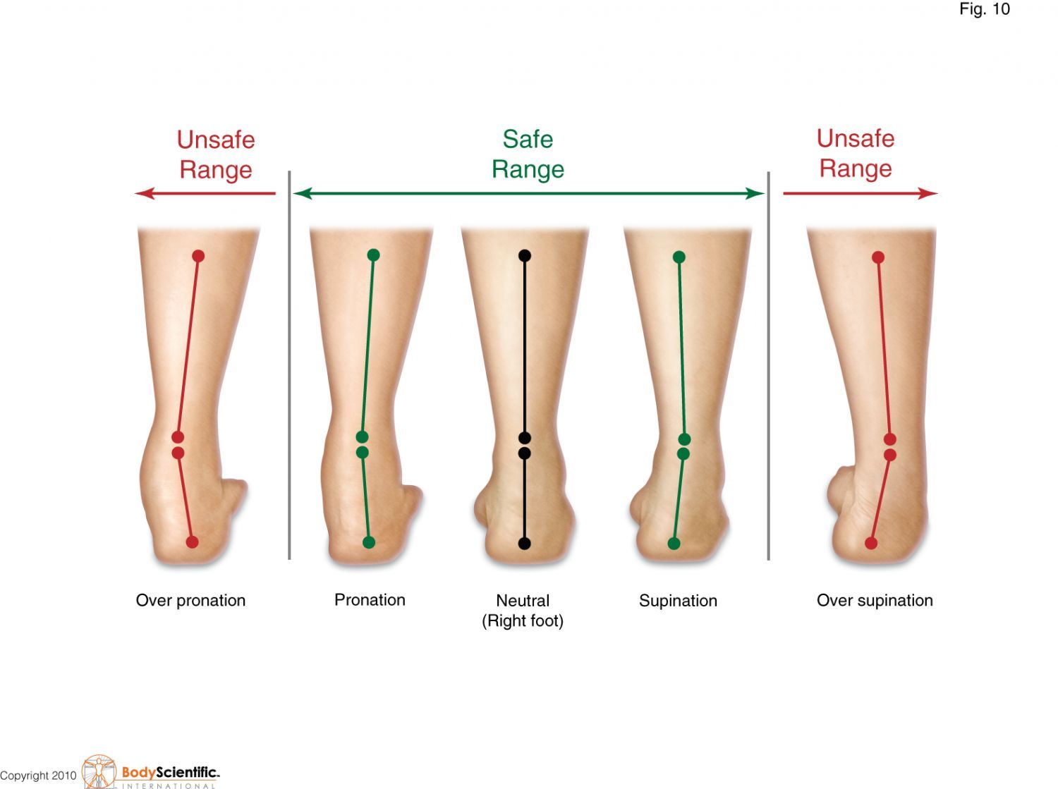 Excessive Subtalar Pronation And Supination Caused By Forefoot And