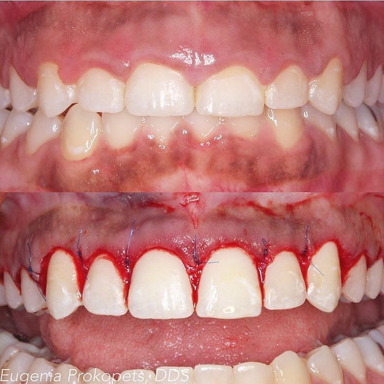 If you think your teeth are too short, periodontal plastic