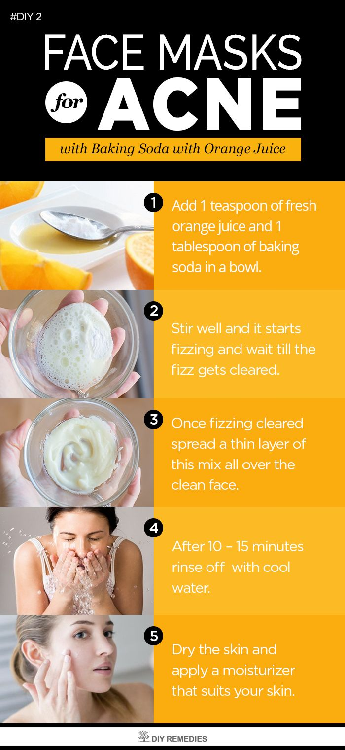 Pin On Acne Remedies