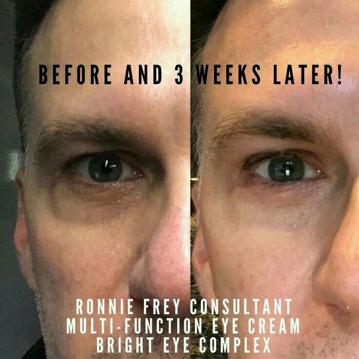 before and after results rodan and fields multi function eye cream bright eye complex men. Black Bedroom Furniture Sets. Home Design Ideas