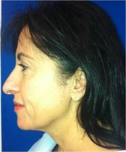 Facelift surgery cost in lahore | cosmetic surgery | Non surgical