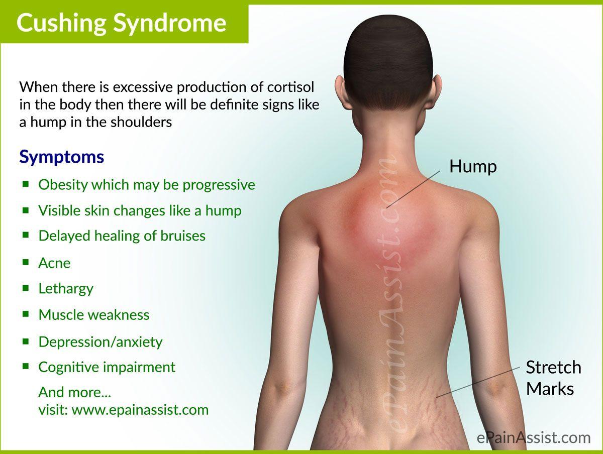 Cushing Syndrome Treatment Natural