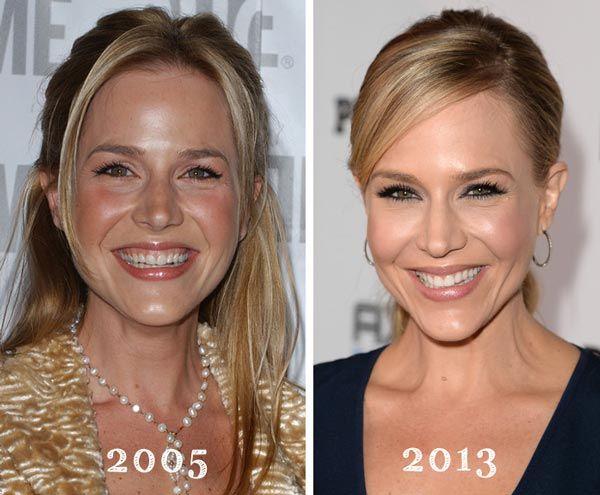 Superb Julie Benz Plastic Surgery Before U0026 After