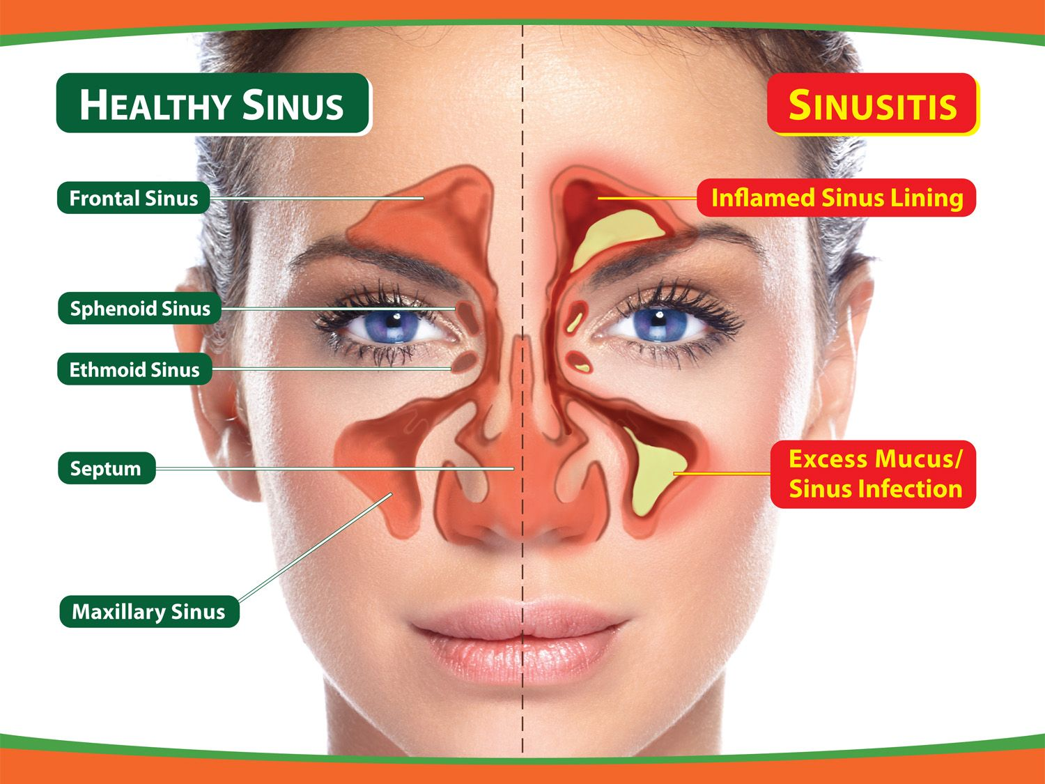 sinus infection (sinusitis home remedies sinus infection Diagram of Sinus and Nasal Passages
